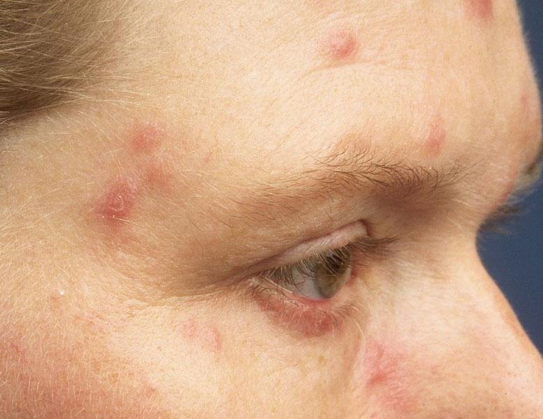 syfilis příznaky