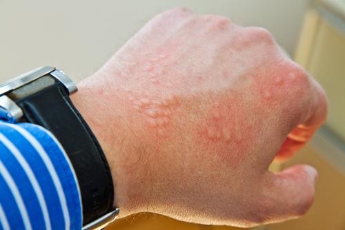 vyrazka alergicka reakce
