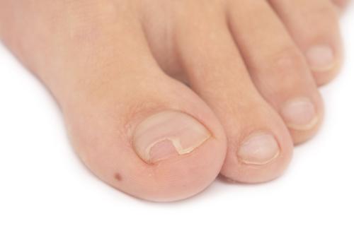 játra lámavé nehty