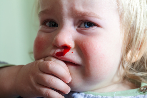 krev-z-nosu-u-dětí